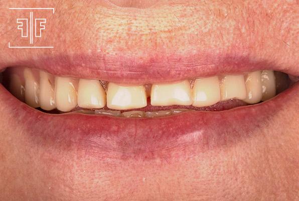 Caso 6 - Protocolo sobre implantes