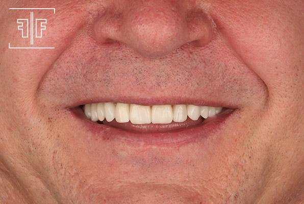 Depois - Reabilitação Oral Estética