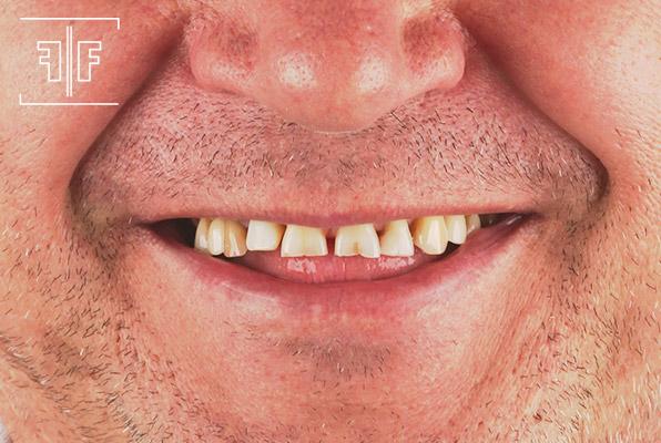 Antes - Reabilitação Oral Estética