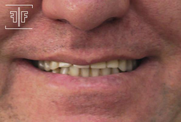 Antes - Implantes inferiores e Prótese protocolo superior