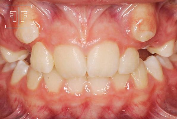 Antes - Ortodontia aparelho fixo