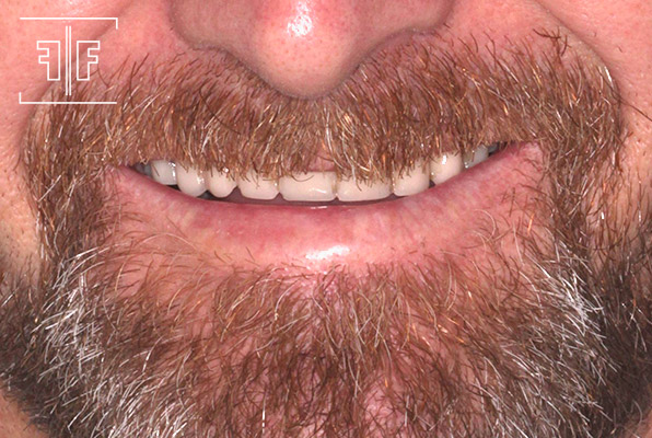 Antes - Prótese Dentária