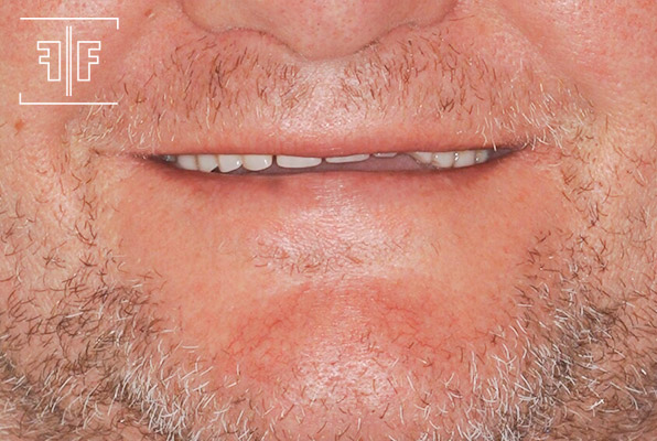 Antes - Prótese Protocolo sobre implante