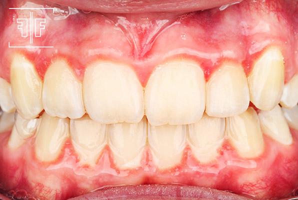 Depois - Ortodontia aparelho fixo