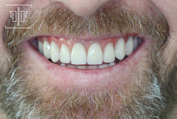 Depois - Prótese Dentária