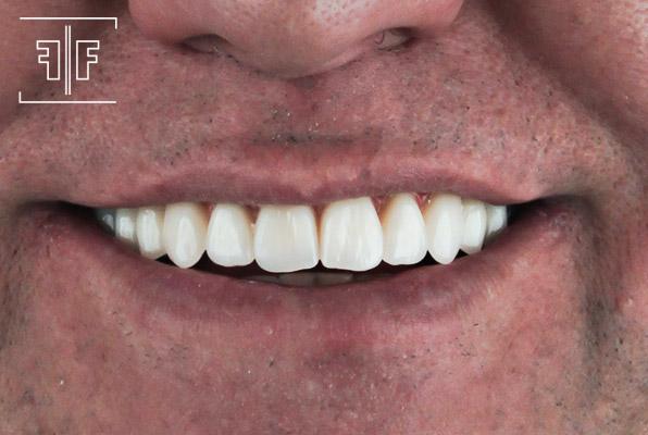 Depois - Implantes inferiores e Prótese protocolo superior