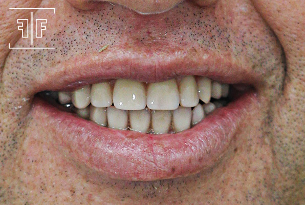 Depois - Prótese Protocolo sobre implante