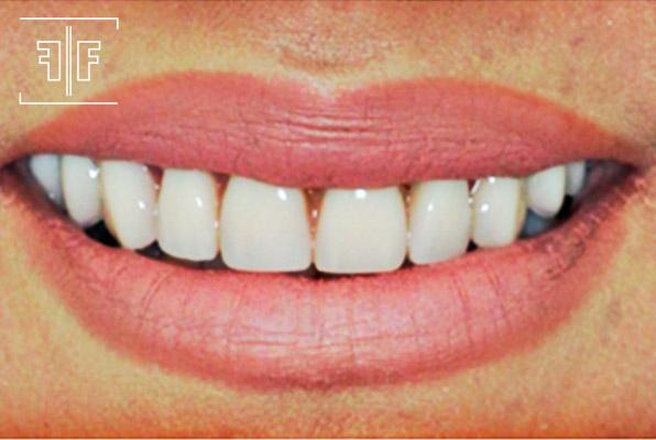 Depois - Prótese Protocolo sobre implantes